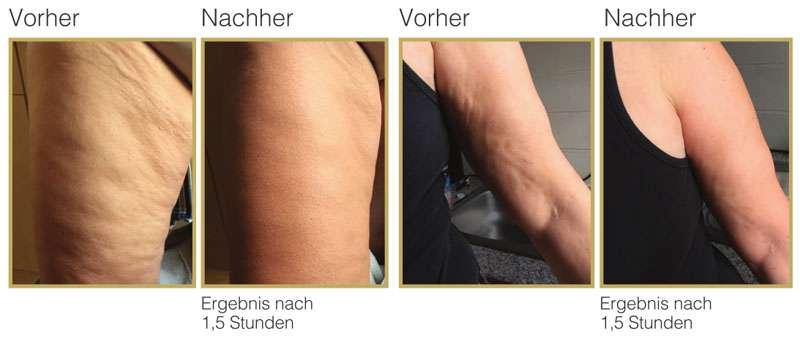 So wirkt ByeByeCellulite von Juchheim Cosmetics