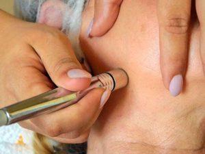 Schonendes und effektives Peeling: Diamant-Mikrodermabrasion
